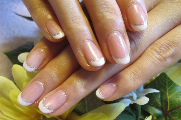 広がった爪の矯正 施術後(2012年5月)