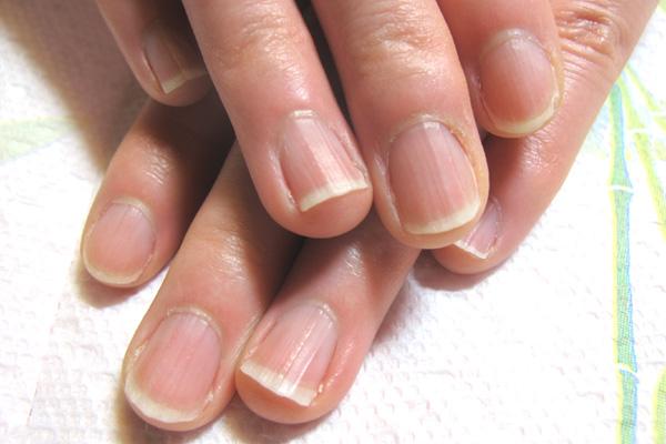 広がった爪の矯正 施術前