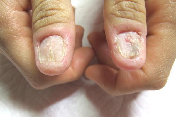 つぶれた爪の矯正 施術前