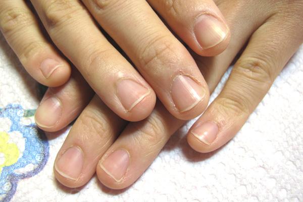 三角の爪の矯正 施術前