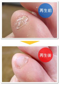 つぶれた小指の爪の再生
