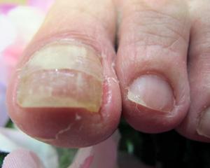 top-3pr-ingrown-nail